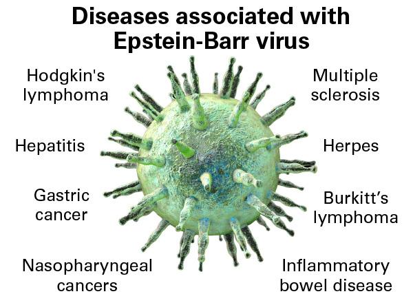 When Epstein-Barr virus becomes a chronic menace: chronic