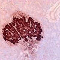 IHC staining with anti-rat rabbit igG antibody