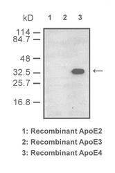 Western blot of recombinant ApoE isoforms detected with Anti-Human ApoE4 (5B5) Rabbit IgG Antibody