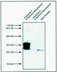 Western blot detected with Anti-Human Presenilin-1 (17C2) Mouse IgG MoAb