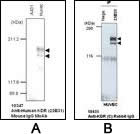 Western blot (A) and immunoprecipitation assay (B) using Anti-Human KDR (23B31) Mouse IgG MoAb