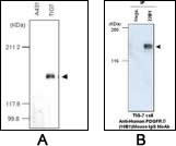 Western blot (A) and immunoprecipitation assay (B) using Anti-Human PDGFR-beta (22B1) Mouse IgG MoAb