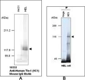 Western blot (A) and immunoprecipitation analysis (B) using Anti-Human Tie-1 (9C1) Mouse IgG MoAb