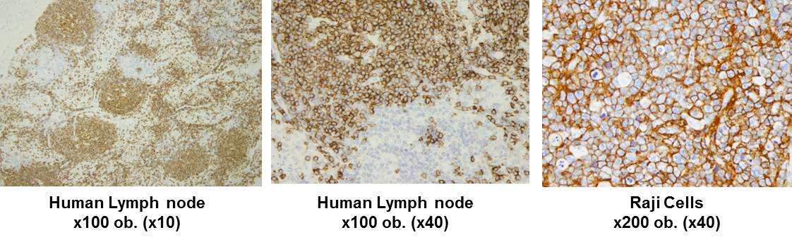 Human lymph node tissue and Raji cells after IHC staining with Anti-Human CD20 (N) Monoclonal Antibody