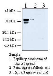 Western blot detected with Anti-Human Galectin-3 (38B2) Mouse IgG MoAb