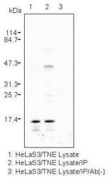Western blot detected with Anti-Human p16INK4a (1H4) Mouse IgG MoAb
