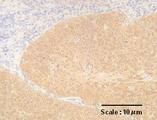 Cross-section of human cervical cancer tissue after IHC staining with Anti-Human p16INK4a (1H4) Mouse IgG MoAb