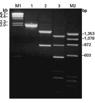 PCR amplification of the full coding region from human TFR mRNA