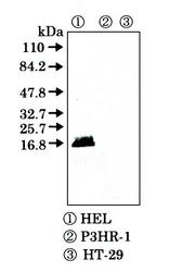 Western blot detected with Anti-Human FHIT (F130) Rabbit IgG Antibody