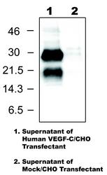 Western blot detected with Anti-Human VEGF-C(103) Rabbit IgG Antibody