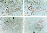 Human lung adenocarcinoma tissue after IHC staining with Anti-Human COX-2 (C295) antibody