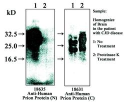 Western blot detected with Anti-Human Prion Protein (N) and (C) Rabbit IgG Antibodies
