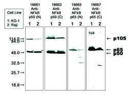 Western blot detected with Anti-Human NF-kappaB p50 and p65 Antibodies