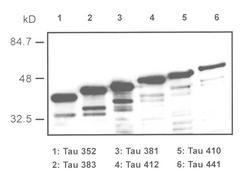 Western blot of recombinant tau isoforms detected with Anti-Human Tau Rabbit IgG Antibody