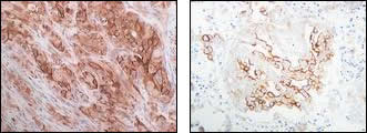 Cross-section of MKN45 transplants into nude mouse (A) and pleural mesothelioma (B) after IHC staining with Anti-Human Syndecan-4 Rabbit IgG Antibody
