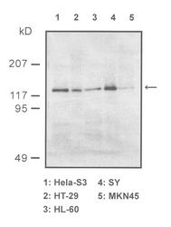 Western blot detected with Anti-Human Sir2/SIRT1 Rabbit IgG Antibody