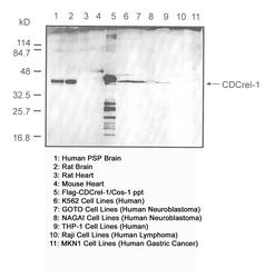 Western blot detected with Anti-Human CDCrel-1 (C354) Rabbit IgG Antibody