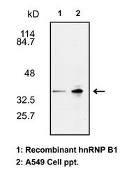 Western blot detected with Anti-Human hnRNP B1 Rabbit IgG Antibody