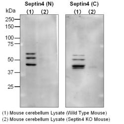Western blot of cerebellum tissue lysates from wild-type and septin 4 knockout mice, detected with Anti-Human Septin 4 Rabbit IgG Antibodies