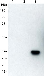 Western blot detection of a DmrC-tagged protein with the DmrC Polyclonal Antibody (Cat. No. 635091)
