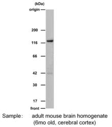 Western blot with Anti-Drebrin A (DAS2) Rabbit IgG Antibody