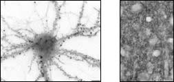 Cross-section of cultured hippocampal neuron (A) and adult rat cerebral cortex tissue (B) after IHC staining with Anti-Drebrin A (DAS2) Rabbit IgG Antibody