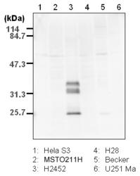 Western blot detected with Anti-Human Podoplanin Rabbit IgG Antibody