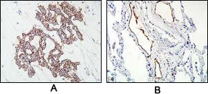 Cross-section of human malignant pleural mesothelioma (A) and lymphatic vessel (B) tissue after IHC staining with Anti-Human Podoplanin Rabbit IgG Antibody
