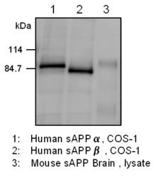 Western blot of transfected COS cells and mouse brain tissue extracts, detected with Anti-APP (18) Rabbit IgG  Antibody