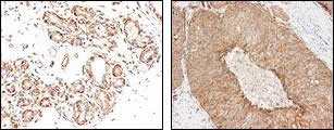 Cross-section of human myoepithelium tissue (A) and basal cell-like breast carcinoma (B) after IHC staining with Anti-Human CD109 (1383) Rabbit IgG Antibody