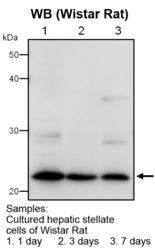 Western blot detected with Anti-Mouse LRAT (168) Rabbit IgG Antibody