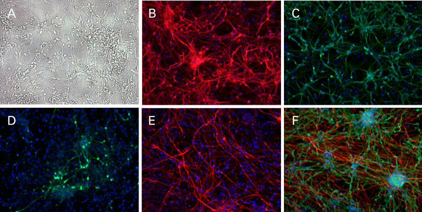 Adherent human neural stem cells differentiated in RHB-A culture medium express neural lineage markers, including microtubule associate protein 2 (Panel B), neuron-specific class III beta-tubulin (Panel C), gamma amino butyric acid (Panel D), and glial fibrillary acidic protein (Panel E)