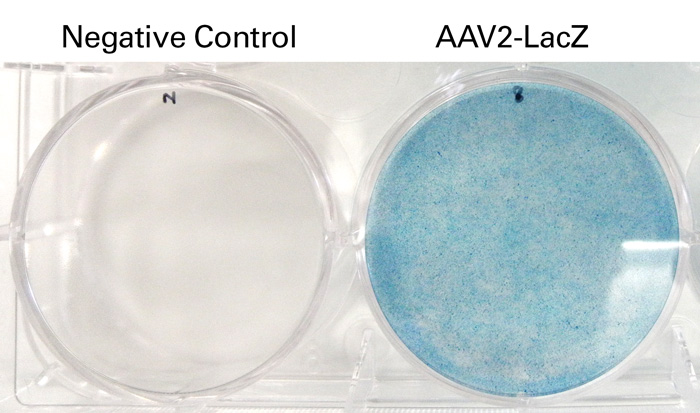 X-gal staining of HT1080 cells infected with AAV2-LacZ