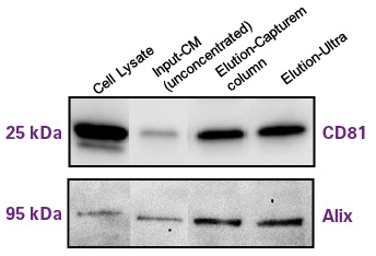 Western blot analysis for characteristic exosome proteins