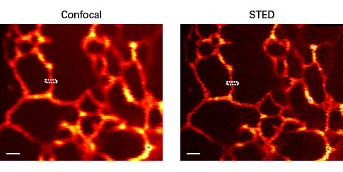 E2-Crimson is useful for confocal and STED (stimulated emission depletion) microscopy