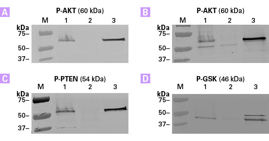 Highly effective enrichment of phosphorylated proteins using the TALON PMAC Magnetic Phospho Enrichment Kit