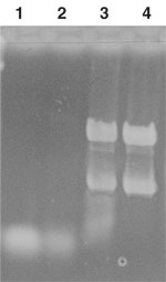 Formamide/formaldehyde gel electrophoresis of bacterial total RNA purified with the NucleoBond RNA/DNA kit