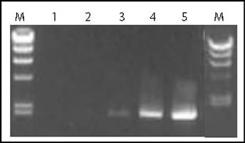 Amplification of a 2 kb lambda-DNA Fragment with e2TAK DNA Polymerase and Company P's DNA Polymerase