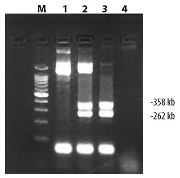 Amplification of the Huntington's Disease (HD) gene using Takara LA Taq DNA Polymerase