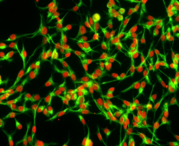 Adherent mouse neural stem cells cultured in RHB-A medium supplemented with epidermal growth factor and fibroblast growth factor-2 express sex determining region Y-box 2 (Sox2, red) and Nestin (green)