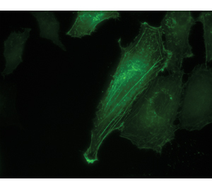 Living Colors AcGFP1 is ideal for fluorescence microscopy applications