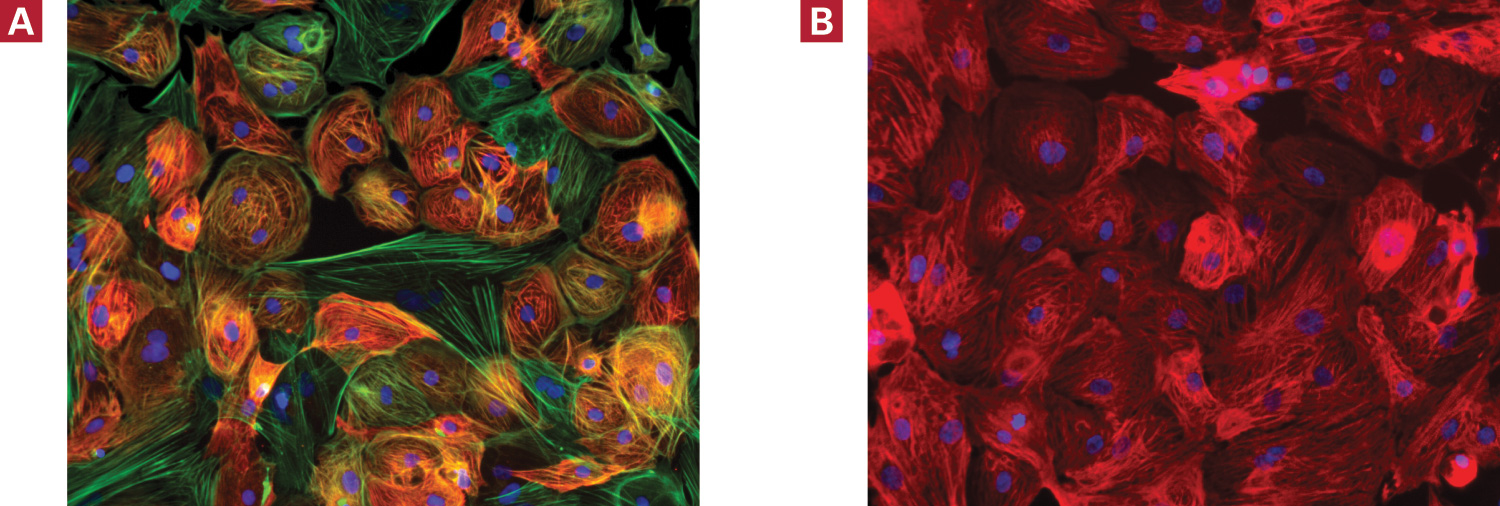 Cellartis Cardiomyocytes (from ChiPSC22) express cardiomyocyte markers, including cTroponin (red)