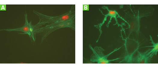 Lentiviral vector delivery of fluorescently labeled protein expression to human neural progenitor cells
