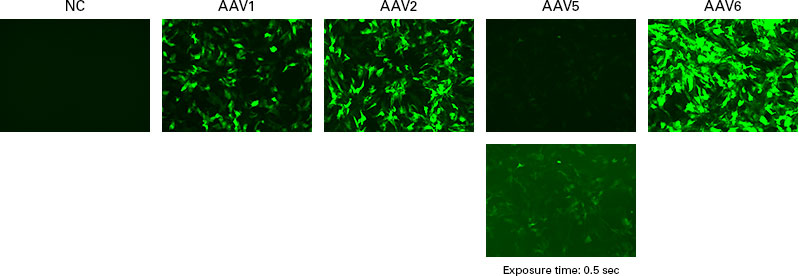 Gene transduction of iPSC-derived cardiomyocytes using AAV1, 2, 5, and 6.